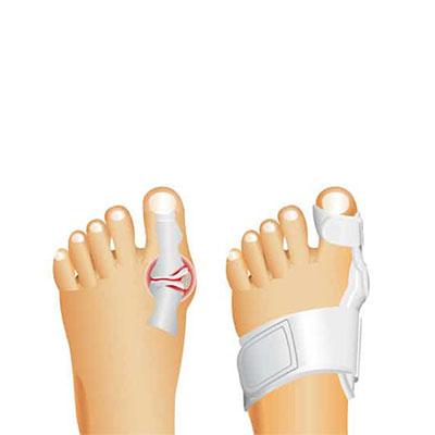 Ayakkabı Topuğunuz 6 Cm'den Yüksekse Dikkat!