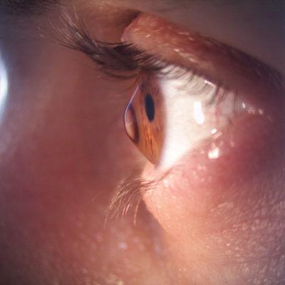 Göz Ovalamak Keratokonus Hastalığına Sebep Olabilir