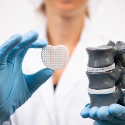 Evonik, Emilebilir Polimerleri DURECT Corporation'dan Satın Alacak
